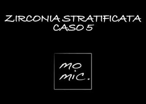 zirconia_caso_5