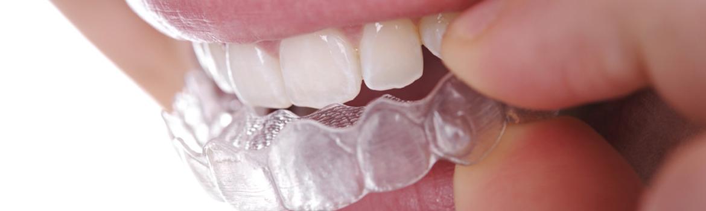 ortodonzia_invisibile_01