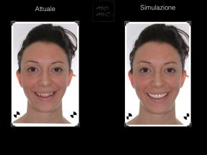 simulazione-sorriso-dentale-digitale-01