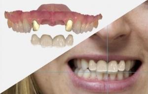 simulazione-sorriso-dentale-digitale-02