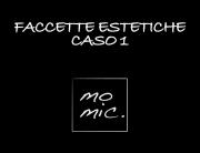 faccette_estetiche_caso_1