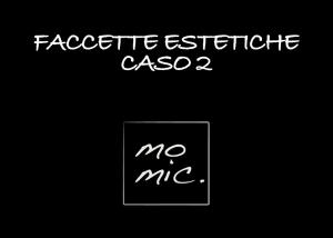 faccette_estetiche_caso_2