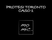 protesi_toronto_caso_1