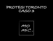 protesi_toronto_caso_3