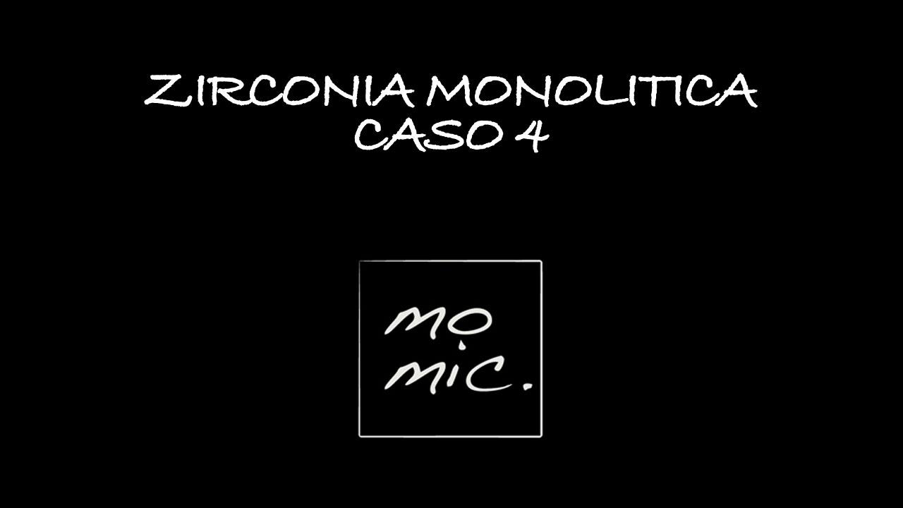 zirconia_caso_4